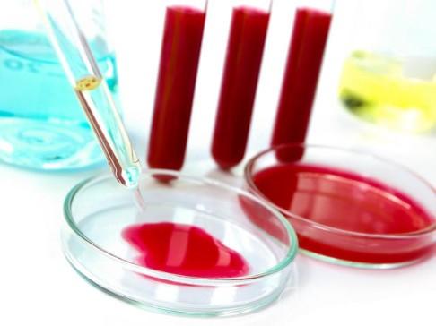 Анализ крови ХГЧ