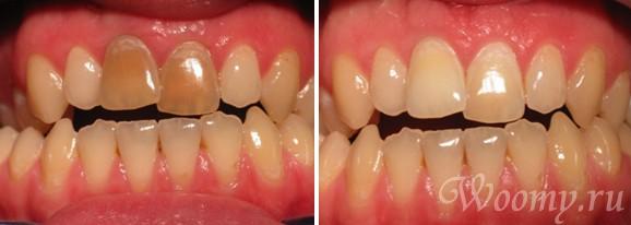 Внутриканальное осветление зубов